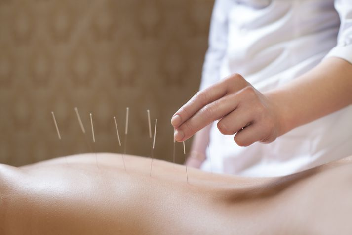Acupuncture Is Not Just For Pain | Balance Natural Health ...